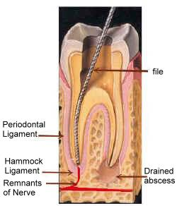 Greg Ganzkow DDS - Endodontics - Shoreline, WA - Endodontics